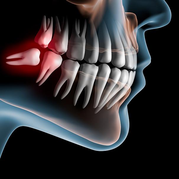 Kieferansicht mit falsch liegendem Zahn